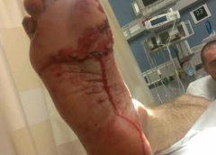 Bobby Baughman shark bite