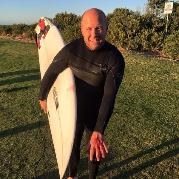 The surfer via 101.3 SeaFM