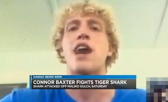 Connor_Baxter_2016_shark_bite
