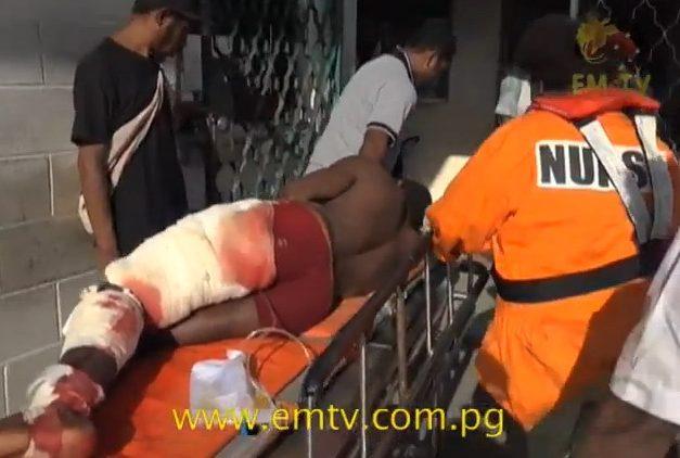 man-bitten-by-shark-in-papua-new-guinea_emtv