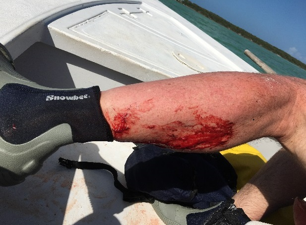 2017_shark_attack_Fisherman bitten shark in the Bahamas George