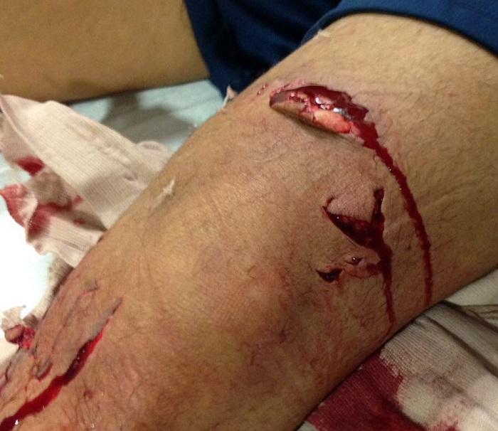 2017 shark attack bite Haulover Beach Miami Florida Elvin Lanza_6