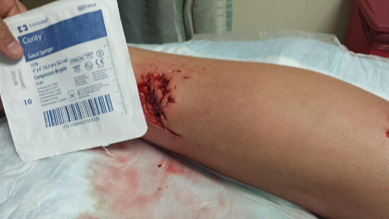 Jacksonville, Florida Shark attack bite Lisa McCarty