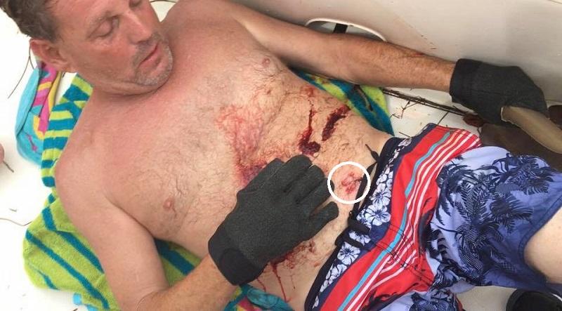2017 shark attack bite off Marathon City_Ervin Maccarty_