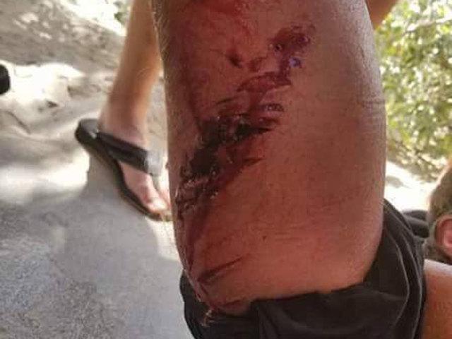 Ft.Worth_Florida_shark_attack_bite