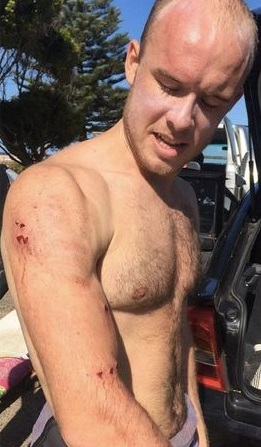2017 shark attack bite_Avooca Beach_NSW_Charlie Fry