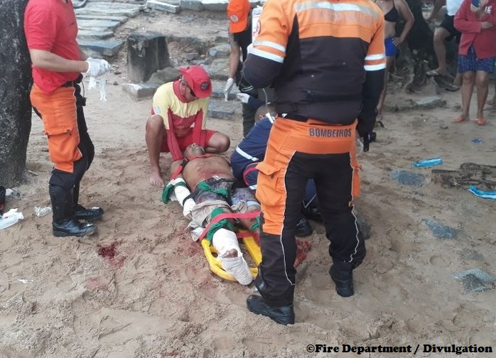 Man loses leg to shark in Brazil