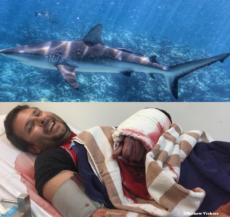 Man bitten by shark on Great Barrier Reef Matthew Vickers shark bite photo
