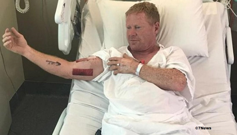 bodysurfer was bitten by a shark in New South Wales, Australia