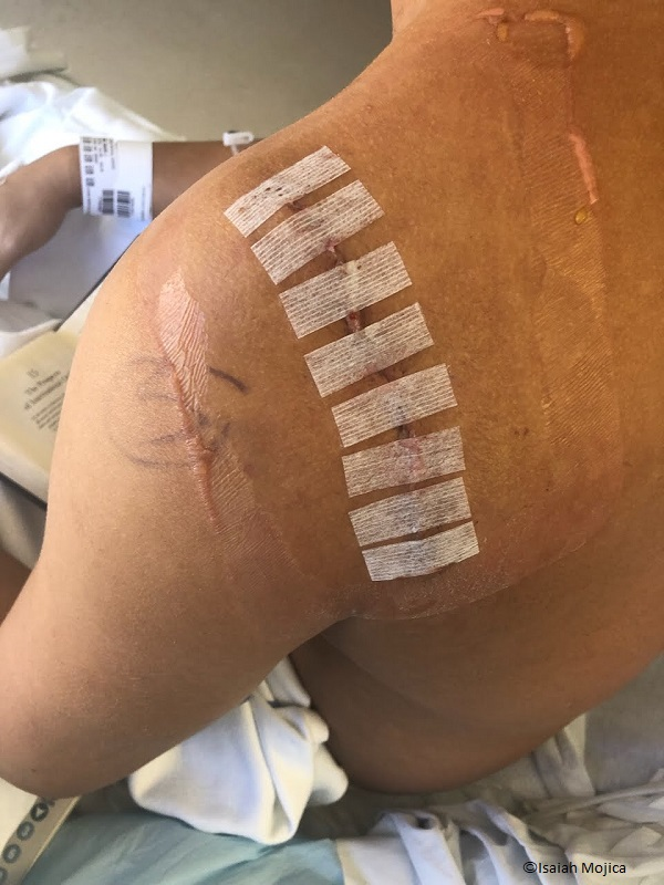 Isaiah Mojica shoulder after being bitten by a cookiecutter shark