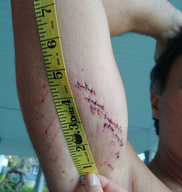 Gene Brooks showing his scar from a shark attack Savannah, Georgia