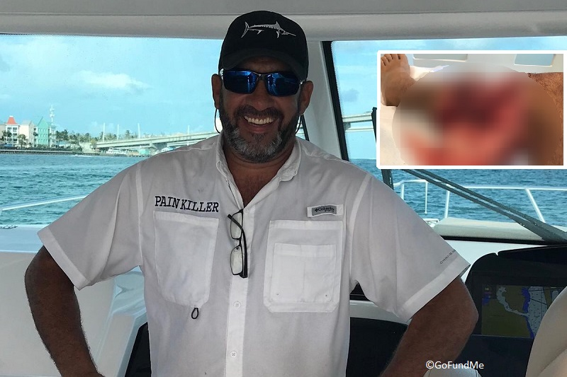 Bahamas snorkeler nearly loses leg in shark attack in fourth incident this year.