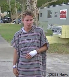 surfer bitten on the hand by a shark in Florida.