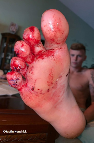 Firfighter bitten by shark in Fort Pierce, Florida