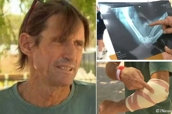 Peter O'Halloran was bitten on the arm by a shark while snorkeling.